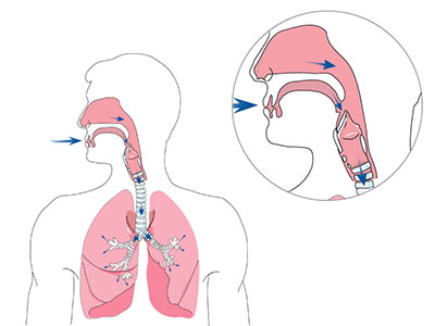 home-noninvasive-ventilation-breathing-respiration-400x300